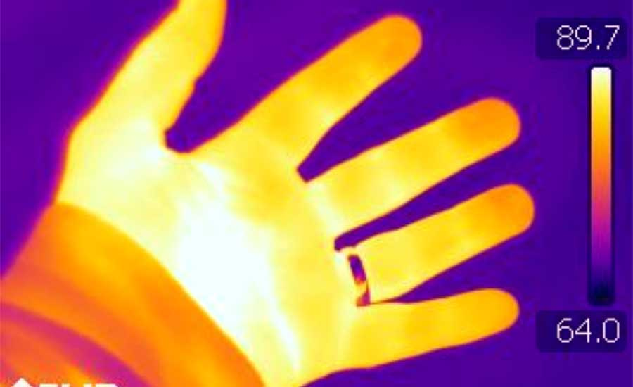 The infrared thermograph of a normal